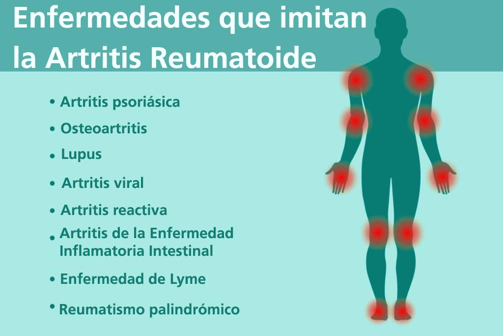 pruebas soldier detectar artritis