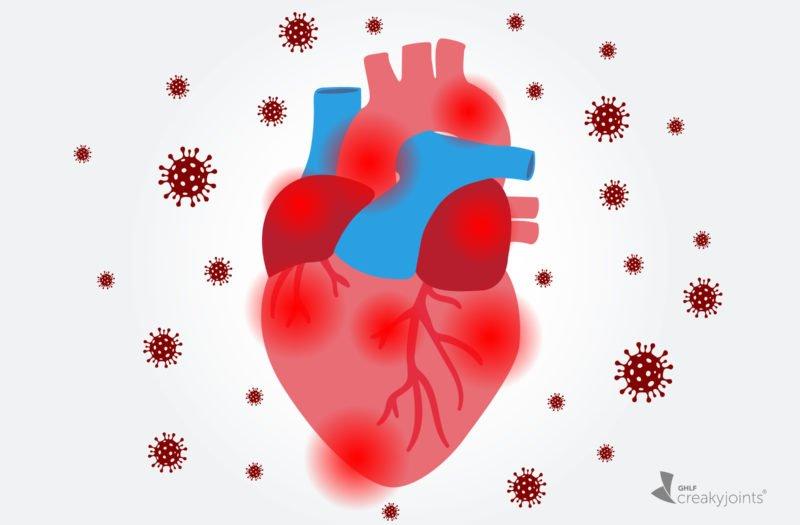 Cómo afecta el COVID-19 al corazón: qué debes saber si tienes un mayor  riesgo de enfermedad cardíaca debido a una condición inflamatoria o  reumática - CreakyJoints