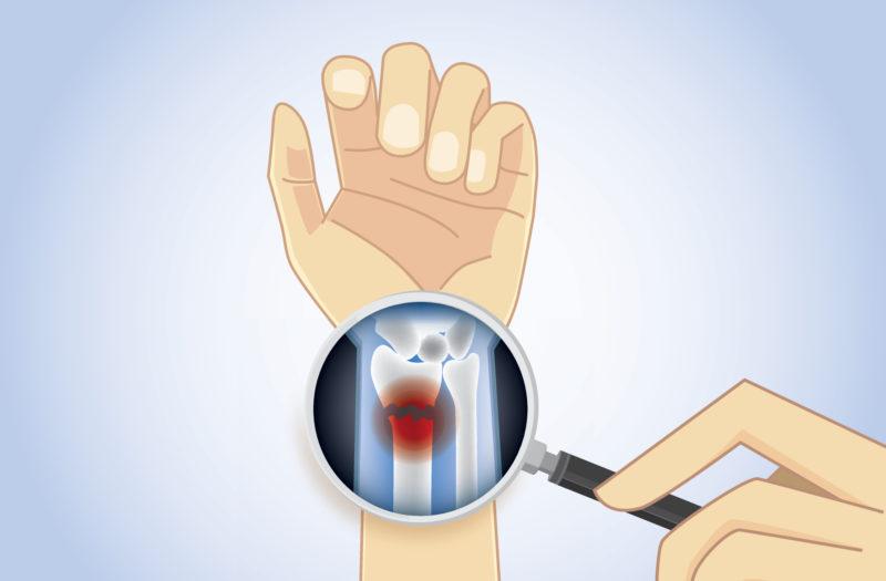 Medicamentos_Huesos_fracturas_Artritis_Reumatoide