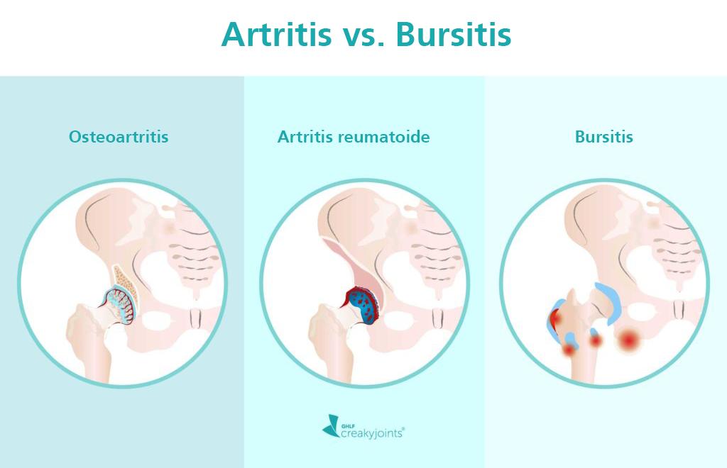 artritis vs bursitis
